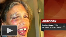 Steven Tyler on the Today Show